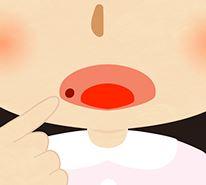 口内炎ができやすい体質