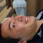 【日常】 新小岩の「あおい整骨院」で美容鍼を受けてみる